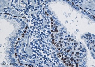 Immunohistochemistry (Formalin/PFA-fixed paraffin-embedded sections) - Pbx3 antibody (ab56239)