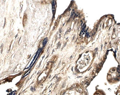 Immunohistochemistry (Formalin/PFA-fixed paraffin-embedded sections) - MMP10 antibody [MM0024-9G10] (ab56304)