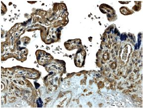 Immunohistochemistry (Formalin/PFA-fixed paraffin-embedded sections) - MMP14 antibody [MM0027-9E10] (ab56307)