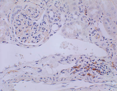 Immunohistochemistry (Formalin/PFA-fixed paraffin-embedded sections) - CD3 antibody [RM0027-3B19] (ab56313)