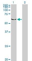 Western blot - Anti-DYRK2 antibody (ab56363)