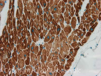Immunohistochemistry (Formalin/PFA-fixed paraffin-embedded sections) - Anti-COP1 antibody (ab56400)