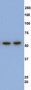 Western blot - Coronin 1a antibody (ab56820)