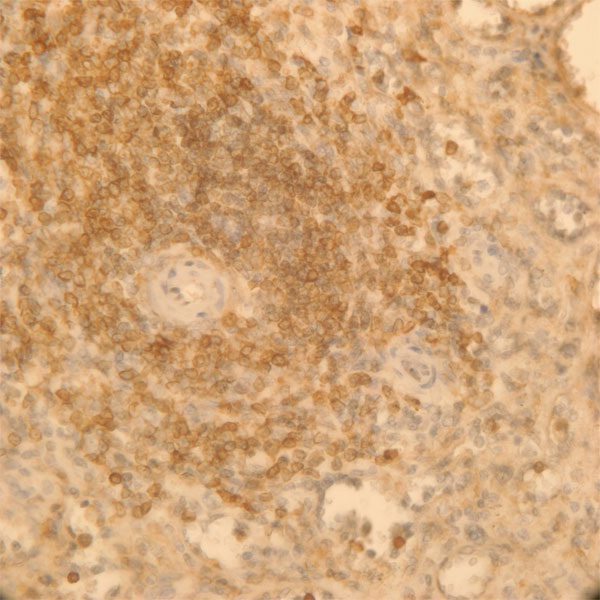 Immunohistochemistry (Formalin/PFA-fixed paraffin-embedded sections) - Anti-AKAP13 antibody (ab56917)