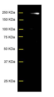 Western blot - Senataxin antibody (ab56984)