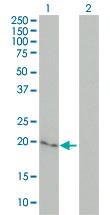Western blot - Cytoglobin antibody (ab57713)