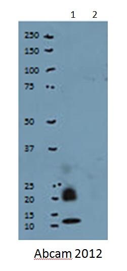 Western blot - Ubiquitin protein (Tagged) (ab57798)