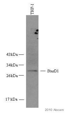Western blot - StAR antibody (ab58013)