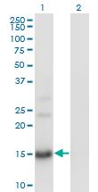 Western blot - BTG2 antibody (ab58219)