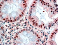 Immunohistochemistry (Formalin/PFA-fixed paraffin-embedded sections) - Anti-MBD2 antibody (ab58241)