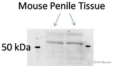 Western blot - TXNRD2 antibody (ab58445)