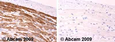 Immunohistochemistry (Formalin/PFA-fixed paraffin-embedded sections)-cardiac Troponin I antibody(ab58544)