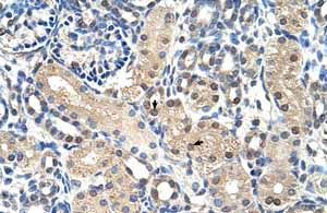 Immunohistochemistry (Formalin/PFA-fixed paraffin-embedded sections)-Anti-GPR161 antibody(ab58679)