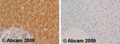 Immunohistochemistry (Formalin/PFA-fixed paraffin-embedded sections) - alpha 2 Macroglobulin antibody (ab58703)