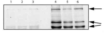 Western blot - alpha 2 Macroglobulin antibody (ab58703)