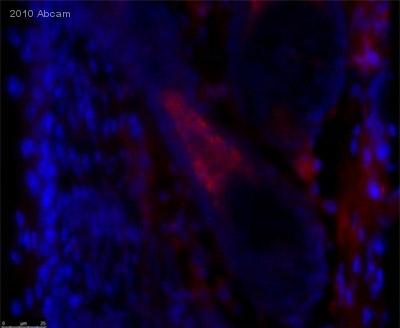 Immunohistochemistry (Frozen sections) - Trichohyalin antibody [AE15] (ab58755)