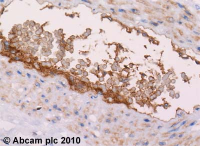 Immunohistochemistry (Formalin/PFA-fixed paraffin-embedded sections) - C4d antibody, prediluted (ab58781)