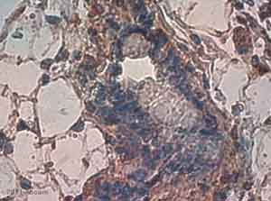 Immunohistochemistry (Formalin/PFA-fixed paraffin-embedded sections) - Cathepsin B antibody [CA10] (ab58802)