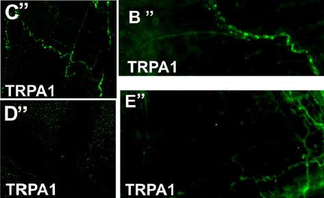 IHC - Wholemount - Anti-TRPA1 antibody (ab58844)