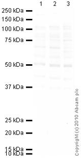 Western blot - CRF1 antibody (ab59023)