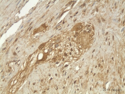 Immunohistochemistry (Formalin/PFA-fixed paraffin-embedded sections) - GALR1 antibody (ab59025)
