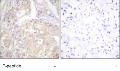 Immunohistochemistry (Formalin/PFA-fixed paraffin-embedded sections) - FGFR1 (phospho Y766) antibody (ab59180)