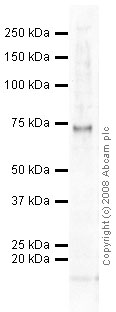Western blot - BMX (phospho Y566) antibody (ab59409)