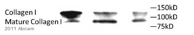Western blot - Anti-Collagen I antibody (ab59435)