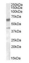 Western blot - Anti-DGAT2 antibody (ab59493)