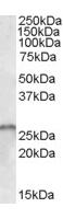 Western blot - SMN1+SMN2 antibody (ab59526)