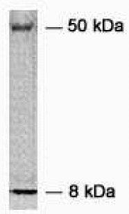 Western blot - Heparanase 1 antibody (ab59787)