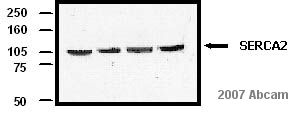 Western blot - Goat F(ab')2 polyclonal Secondary Antibody to Mouse IgG+IgM+IgA - H&L (HRP), pre-adsorbed (ab6006)