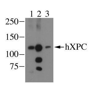 Western blot - Anti-XPC antibody [3.26] (ab6264)