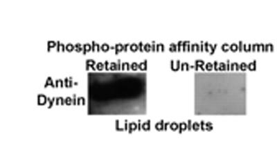 Western blot - Dynein intermediate chain 1 antibody [70.1] (ab6304)