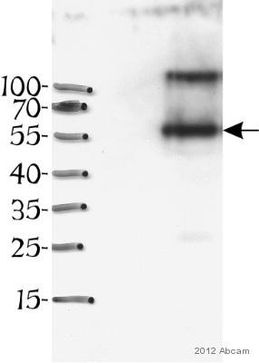 Western blot - Anti-Desmin antibody [DE-U-10] (ab6322)