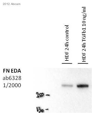 Western blot - Anti-Fibronectin antibody [IST-9] (ab6328)