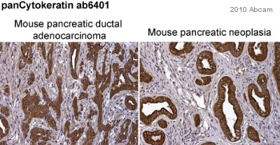 Immunohistochemistry (Formalin/PFA-fixed paraffin-embedded sections) - pan Cytokeratin antibody [PCK-26] (ab6401)