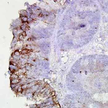 Immunohistochemistry (Formalin/PFA-fixed paraffin-embedded sections) - Hsp90 antibody [AC-16] (ab6536)