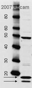 Western blot - Rabbit polyclonal Secondary Antibody to Sheep IgG - H&L (HRP) (ab6747)
