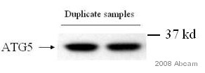 Western blot - Rabbit polyclonal Secondary Antibody to Chicken IgY - H&L (HRP) (ab6753)