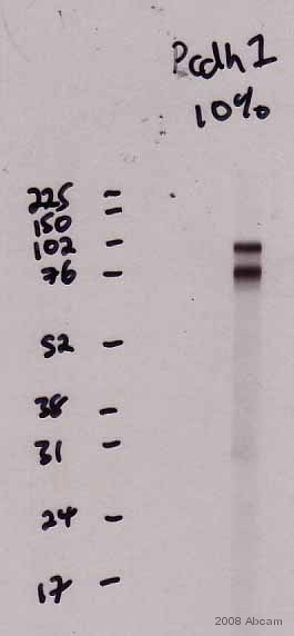 Western blot - Goat polyclonal Secondary Antibody to Mouse IgG - H&L (HRP) (ab6789)
