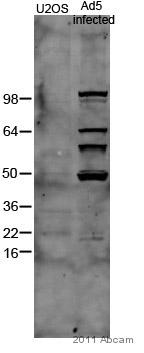 Western blot - Adenovirus Type 5 antibody (ab6982)
