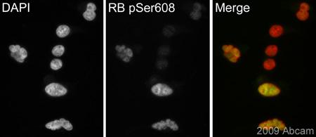 Immunocytochemistry/ Immunofluorescence - Rb (phospho S608) antibody (ab60025)