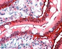 Immunohistochemistry (Formalin/PFA-fixed paraffin-embedded sections) - intestinal FABP antibody (ab60272)
