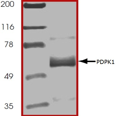 SDS-PAGE - PDPK1 protein (Active) (ab60834)