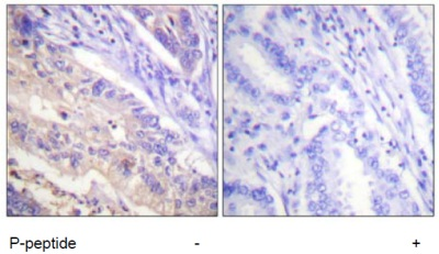 Immunohistochemistry (Formalin/PFA-fixed paraffin-embedded sections) - PTEN (phospho S385) antibody (ab60956)