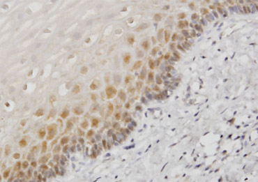 Immunohistochemistry (Formalin/PFA-fixed paraffin-embedded sections)-Hsp70 antibody(ab61097)