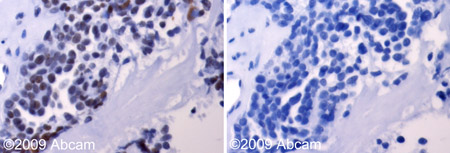 Immunohistochemistry (Formalin/PFA-fixed paraffin-embedded sections)-Aurora A antibody(ab61114)