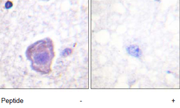 Immunohistochemistry (Formalin/PFA-fixed paraffin-embedded sections) - FAK antibody (ab61165)