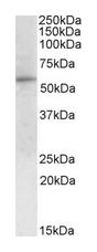 Western blot - Glucose 6 Phosphate Dehydrogenase antibody (ab61704)